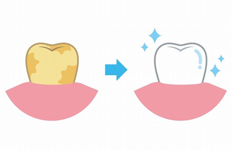 口腔内を清潔に保つ歯のクリーニング