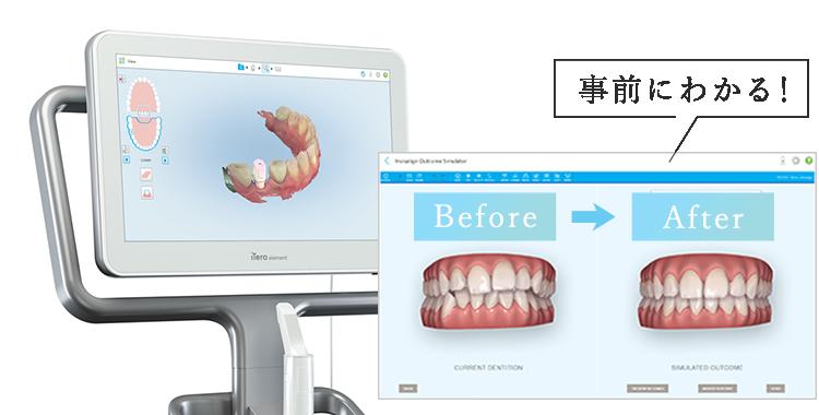 デジタル印象採得装置【iTero】を完備!事前に矯正後のイメージを画像で見ることが出来ます