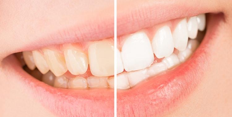 歯並びを綺麗にすると同時にホワイトニングやクリーニングが可能!